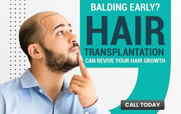 Why Go For Hair Transplantation Rather Than A Hair Wig?