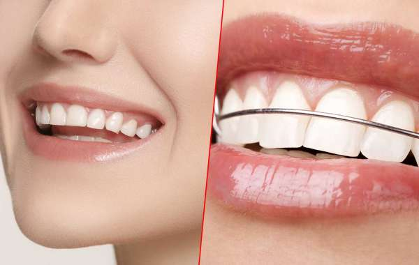 What are the differences between cosmetic dentistry and orthodontics?